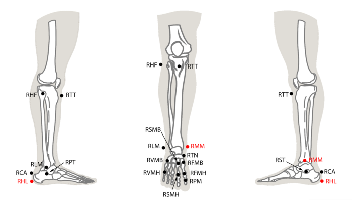Rizzoli Right Foot Protocol (14)